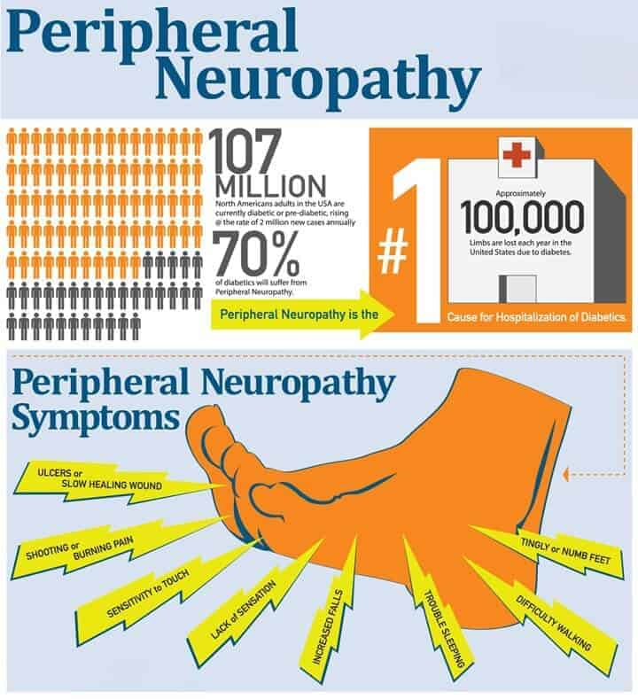 neuropathy-symptoms