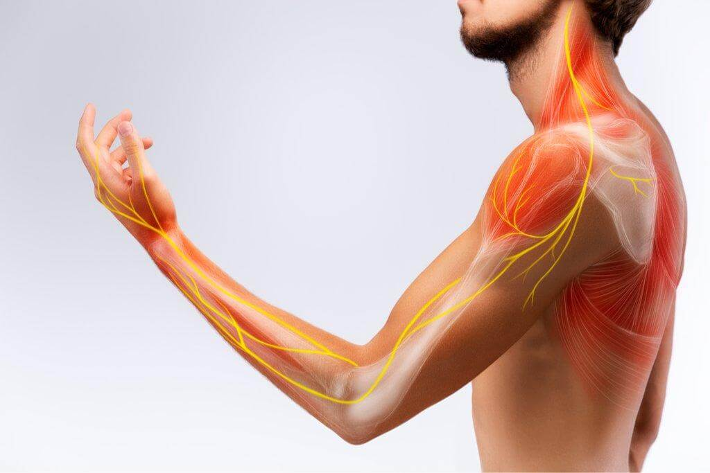 Hand to Arm nerve Pain