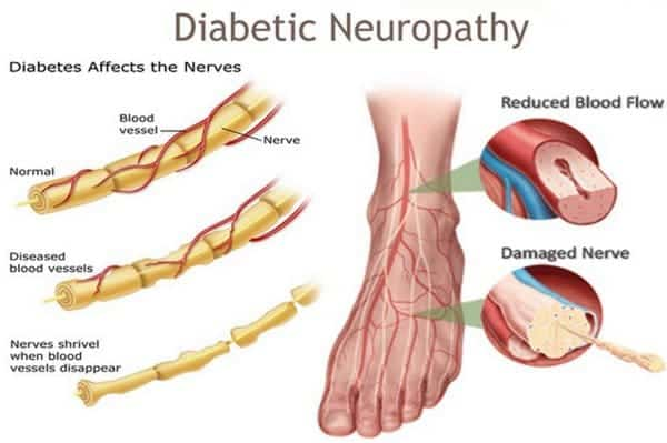 Diabetic Neuropathy effects on blood flow and nerve health
