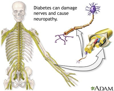 Diabetes can damage nerves and cause neuropathy